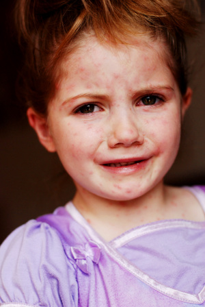 Brinleys_chicken_pox_008_2